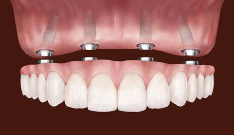 best dental implants in Spanish Fort