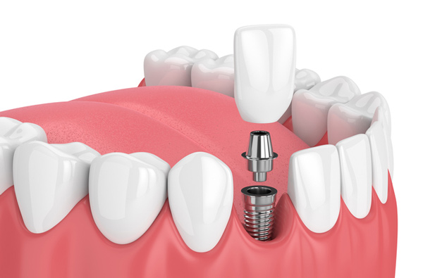 dental implant cost in Houston